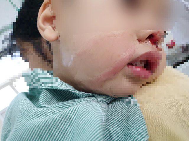 Mẹ bất cẩn nhỏ nhầm axit vào mũi con trai 2 tuổi - Ảnh 1.