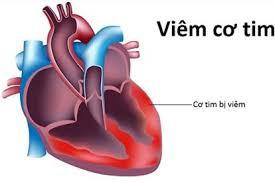 Hình minh họa về bệnh viêm cơ tim.
