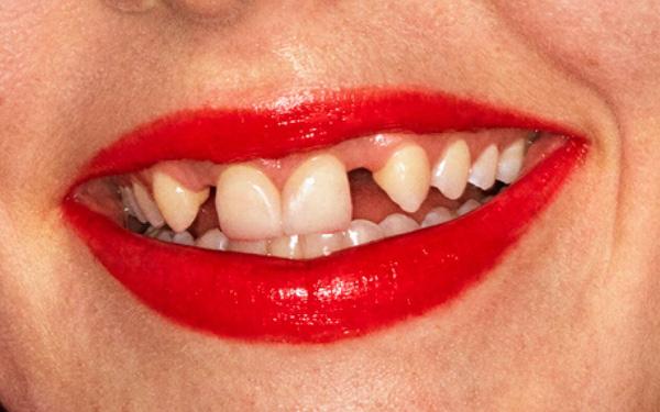Gucci gây tranh cãi với mẫu răng thưa, ố vàng - Ảnh 2.
