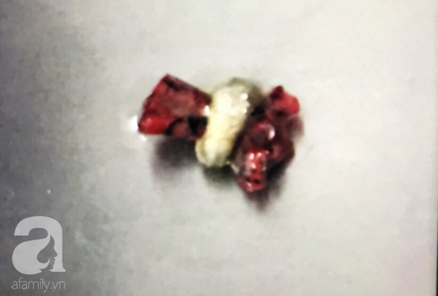 Cắn bút khi ngồi trong lớp, bé gái 7 tuổi ở TP.HCM suýt chết vì nuốt ruột bút chì vào phổi - Ảnh 6.
