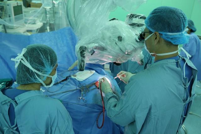 Ký sinh trùng 7cm trong não người đàn ông - Ảnh 2.