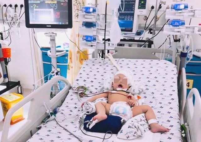 Bé 8 tháng xuất huyết não sau khi đột ngột lên cơn co giật - Ảnh 2.