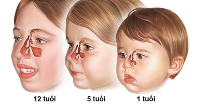 Viêm xoang ở trẻ em có gây biến chứng? - Ảnh 1.