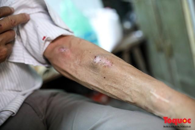 Cuộc sống mưu sinh ngày sát tết của những bệnh nhân chạy thận ở Hà Nội - Ảnh 10.