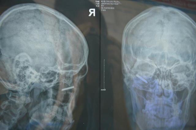 Tai nạn hy hữu ngày cận Tết: Bác sĩ phẫu thuật xong thở phào…may quá! - Ảnh 1.
