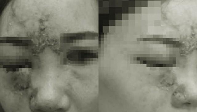 Tiêm filler làm đầy mũi, cô gái 27 tuổi bị mù mắt - Ảnh 1.