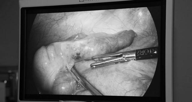 Hy hữu: Phẫu thuật ruột thừa phát hiện xương cá đâm xuyên thành ruột hiếm - Ảnh 1.