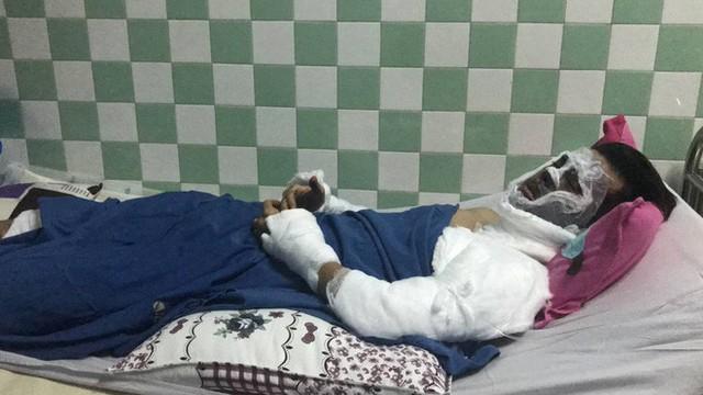 Vụ Việt kiều Canada bị tạt axit, cắt gân chân: Đối tượng gây án là 2 nam thanh niên  - Ảnh 1.