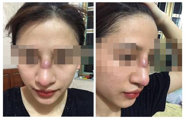 Kinh hãi nhìn chiếc mũi biến dạng sau khi nâng của cô gái 19 tuổi - Ảnh 1.