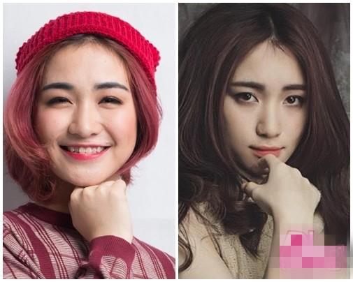 Hòa Minzy vướng nghi án phẫu thuật thẩm mỹ - Ảnh 1.