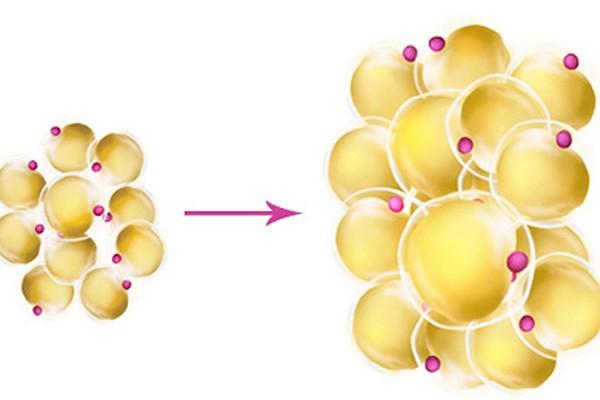 Bạn có biết khối u bướu hình thành qua những bước nào? - Ảnh 4.