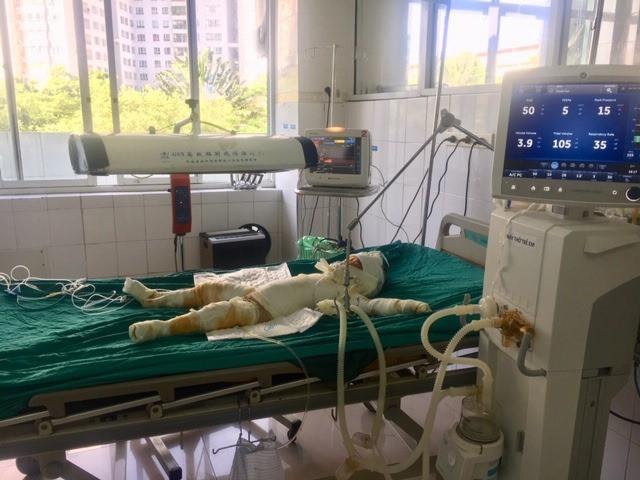 Nạn nhân vụ đốt nhà tình cũ vì mâu thuẫn tình cảm ở Sơn La: Tiên lượng xấu, có thể tử vong bất cứ lúc nào  - Ảnh 2.