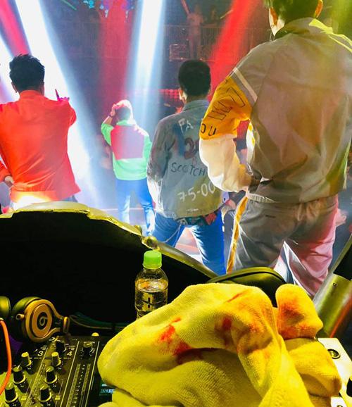 Đàm Vĩnh Hưng bị tai nạn sân khấu phải nhập viện tại tụ điểm giải trí - Ảnh 3.