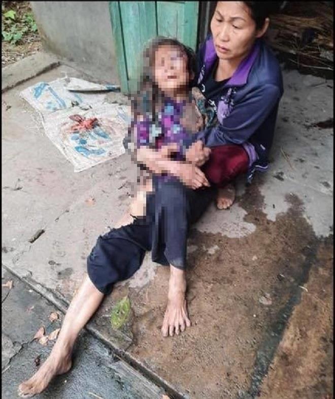 Thái Nguyên: Cụ bà hơn 90 tuổi bị nam thanh niên đánh đập, thiêu sống để cướp tiền - Ảnh 2.
