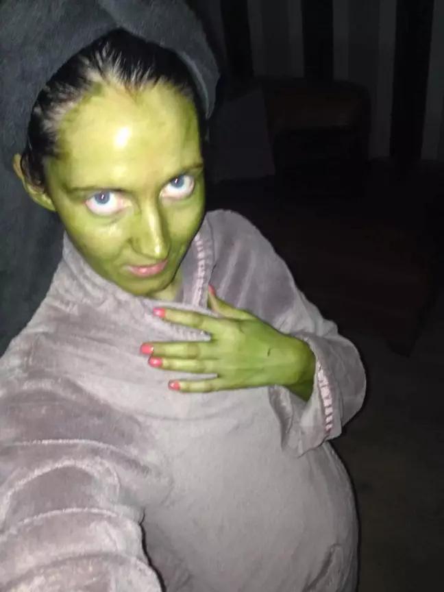 Bà mẹ xanh như tàu lá chuối vì dùng phải thuốc nhuộm da hết hạn - Ảnh 2.