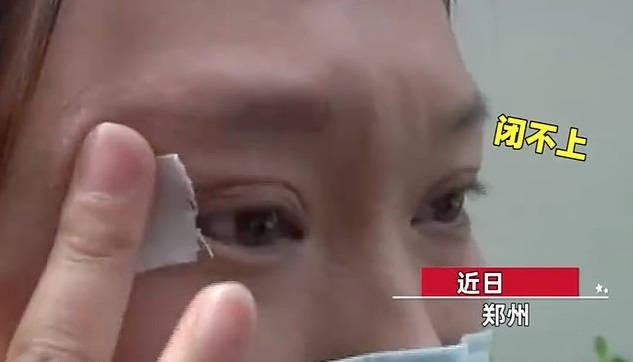 Chi 65 triệu đồng để phẫu thuật cắt mí, đẹp đâu chẳng thấy cô gái sốc khi phát hiện bất thường oái oăm ở đôi mắt của mình - Ảnh 2.
