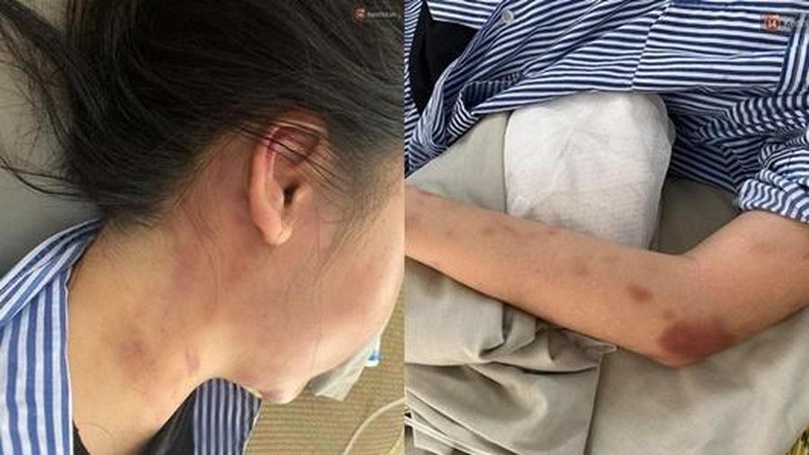 Thông tin mới nhất vụ cô gái trẻ bị gã đàn ông xăm trổ đánh dã man suốt 2 giờ ở Yên Bái - Ảnh 1.