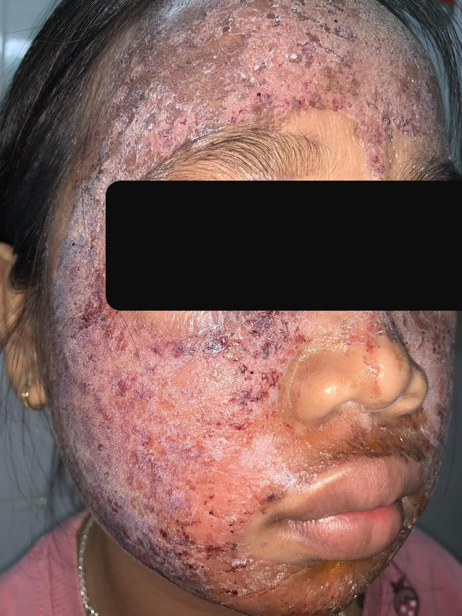 Thích trắng hồng, thiếu nữ 17 tuổi dùng kem lột cấp tốc khiến cả khuôn mặt bị phá nát - Ảnh 2.
