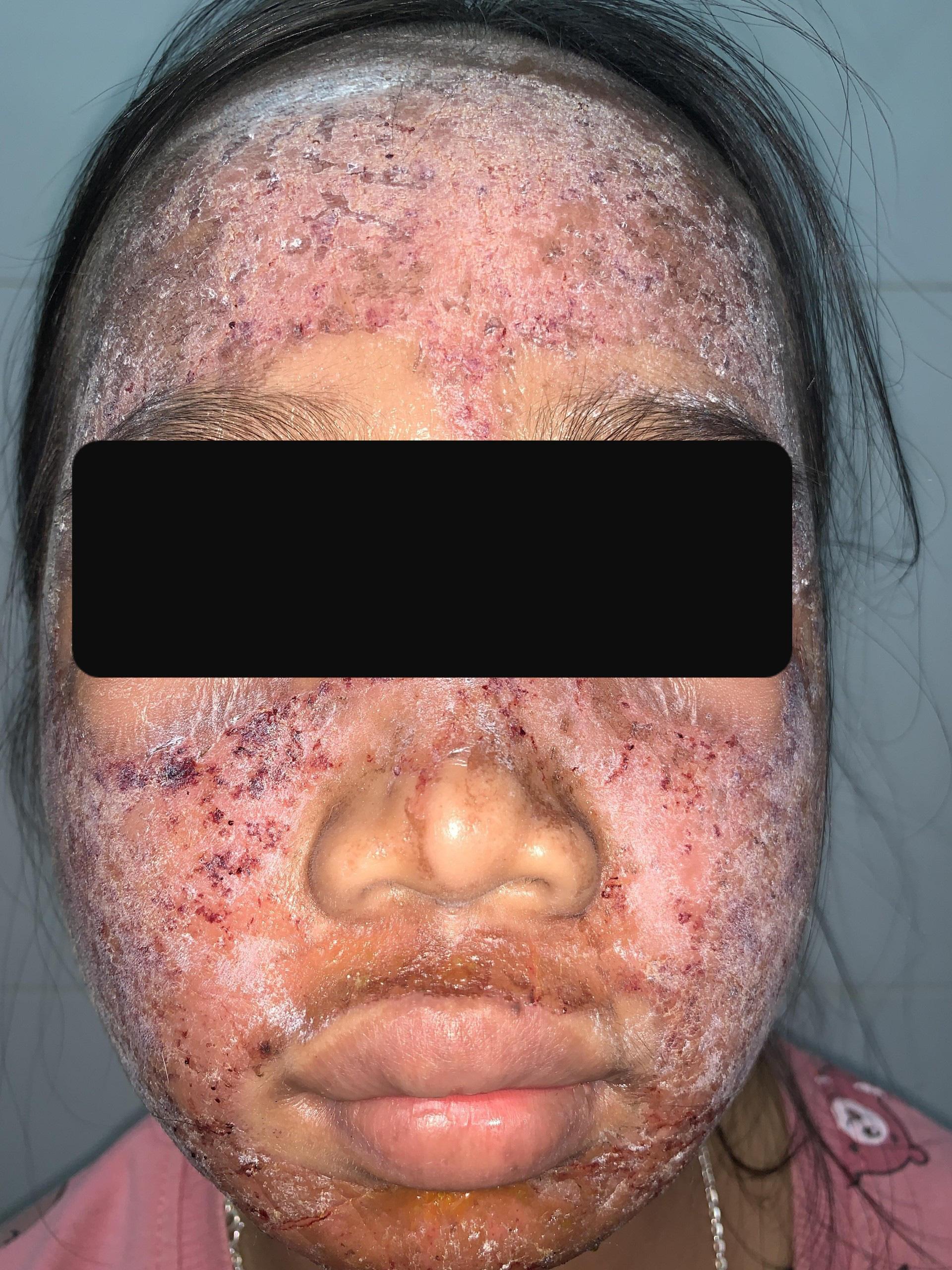 Thích trắng hồng, thiếu nữ 17 tuổi dùng kem lột cấp tốc khiến cả khuôn mặt bị phá nát - Ảnh 1.