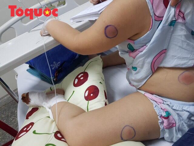 Bị gà mổ vào chân, bé 6 tuổi bị nhiễm vi khuẩn ăn thịt người - Ảnh 1.