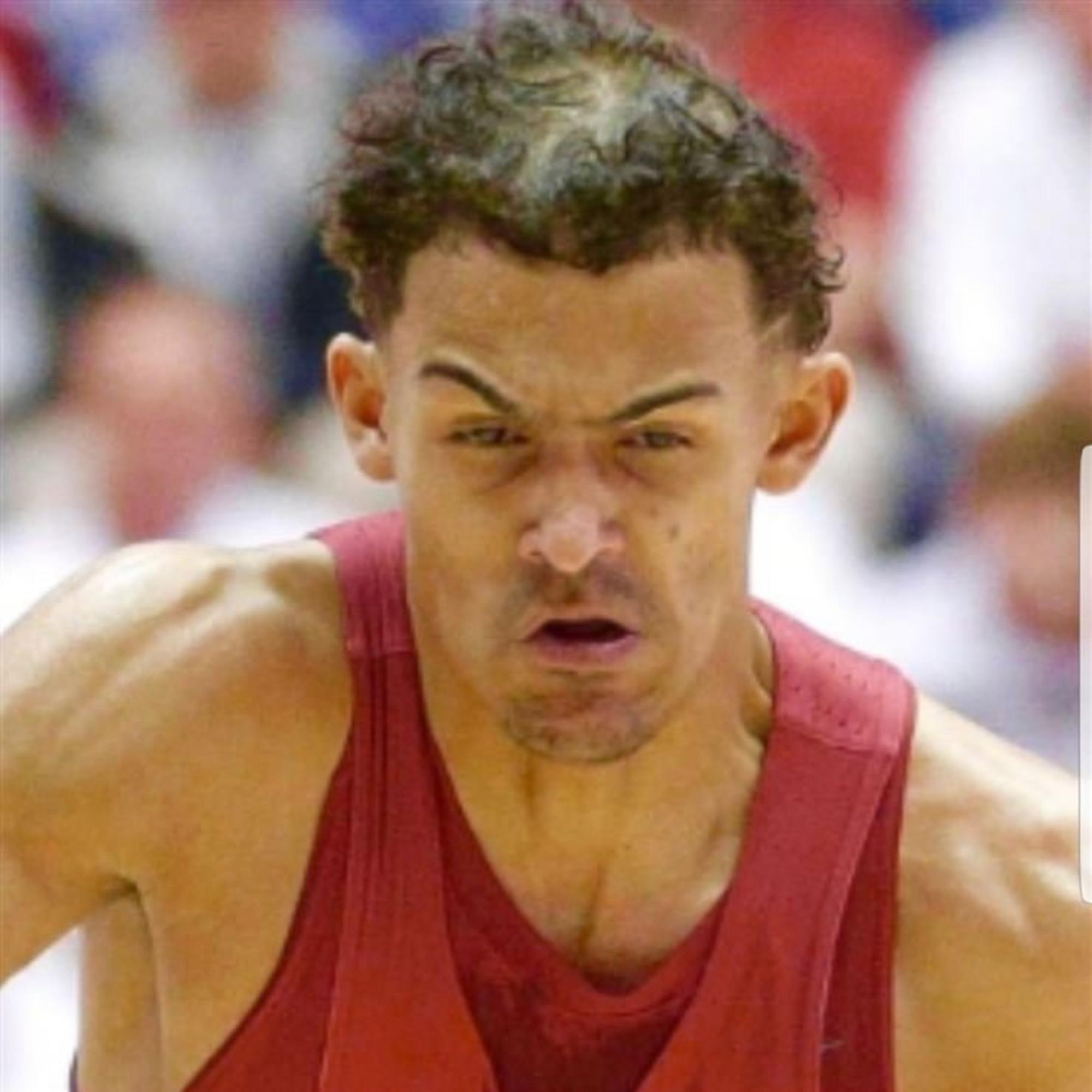 Hói đầu, rụng tóc: Cái giá để trở nên vĩ đại của siêu sao NBA - Ảnh 8.