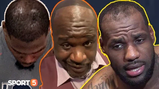 Hói đầu, rụng tóc: Cái giá để trở nên vĩ đại của siêu sao NBA - Ảnh 1.
