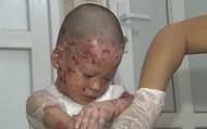 """Người """"Mẹ"""" của những đứa trẻ mắc bệnh hiếm"""