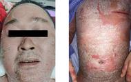 Vảy nền bùng phát toàn thân người đàn ông do tiêm corticoid và dùng thuốc nam không rõ nguồn gốc