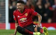 """Sau thất bại trước PSG, Manchester United đối mặt """"khủng hoảng chấn thương"""""""