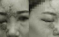 Tiêm filler làm đầy mũi, cô gái 27 tuổi bị mù mắt