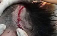 Hà Tĩnh: Bé 4 tuổi bị chó cắn rách da đầu