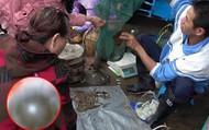 Người phụ nữ bị chảy máu mắt và có nguy cơ mù vĩnh viễn, nguyên nhân hóa ra từ việc đi chợ mua cá sống