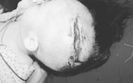 Hà Nội: Bé 2 tuổi bị chó cắn lòi cả xương sọ