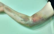 Canada: Đi hiến máu, cô gái 17 tuổi mắc phải căn bệnh mãn tính hiếm gặp khiến tay phải bị tàn phế