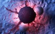 3 nhóm người đặc biệt dễ mắc ung thư: Việc đi khám sàng lọc là không được trì hoãn