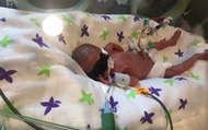 Cặp sinh đôi sinh non có bé chỉ nặng 566gr, hình ảnh hiện tại của hai chị em khiến nhiều người ngỡ ngàng