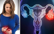 Ung thư buồng trứng thường được phát hiện khi bệnh đã ở giai đoạn cuối: có 5 dấu hiệu sẽ giúp bạn nhận biết sớm căn bệnh này