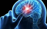 """Bác sĩ cảnh báo: 4 hành vi này chính là """"máy gia tốc"""" tăng bệnh nhồi máu não"""