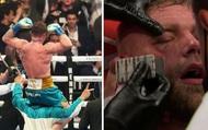 Billy Joe Saunders bị vỡ xương hốc mắt, phải nhập viện khẩn cấp sau thất bại trước Canelo Alvarez