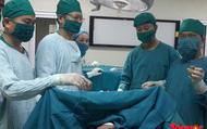 """Phẫu thuật lấy sỏi thận """"khủng"""" trên bệnh nhân bị thận móng ngựa hiếm gặp"""