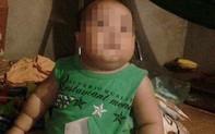 Hà Nội: Bé trai 2 tuổi tử vong bất thường sau khi truyền dịch
