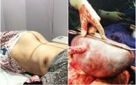 """Hy hữu: Phẫu thuật cắt bỏ khối u """"khổng lồ"""" cho cụ bà hơn 100 tuổi"""
