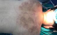 Đi giác hơi về, người phụ nữ 50 tuổi bất ngờ bị liệt 2 chân