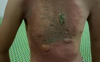Dùng thuốc nam chữa bỏng, nguy cơ nhiễm trùng huyết và tử vong