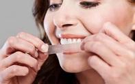 Các phương pháp tẩy trắng răng hiệu quả ai cũng nên biết