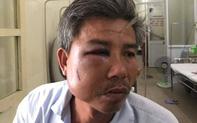 Chụp hình ghi nhận hiện trạng, nhân viên cây xanh bị đánh phải nhập viện