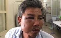 """Khởi tố chủ quán cà phê """"Bố Già"""" vì đánh nhân viên cây xanh nhập viện"""
