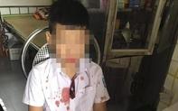 Xác định nguyên nhân bé trai lớp 1 bị phụ huynh hành hung ở Hoà Bình