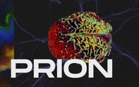 """Những cái chết thầm lặng vì nhiễm prion: Phân tử """"thây ma"""" âm thầm biến não bộ thành bọt biển"""