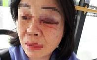 Công an vào cuộc vụ nữ tiếp viên xe buýt bị đánh bầm mắt khi nhắc khách mở nhạc nhỏ